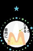 進行度1 歯垢がたまる・歯肉に炎症